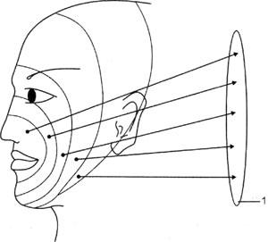 Схема зон сегментарной иннервации кожи лица и связей зон с отделами nucleus spinalis nervi trigemini
