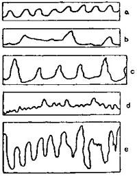 Кривые дыхания при различных эмоциях (по Ж. Дюма)