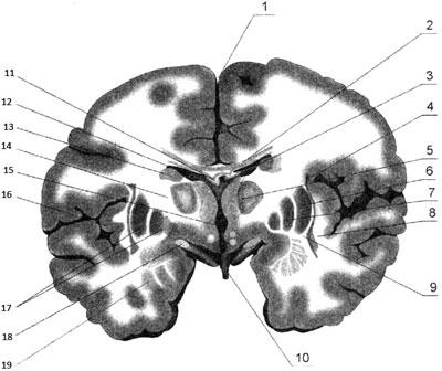 Фронтальный разрез полушарий головного мозга