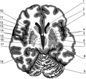 Горизонтальный срез головного мозга на уровне базальных ядер