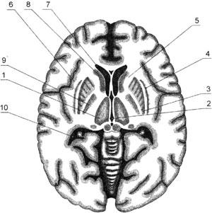Разрез головного мозга в горизонтальной плоскости