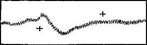 Кривая пульса (по А. Бине и Куртье)