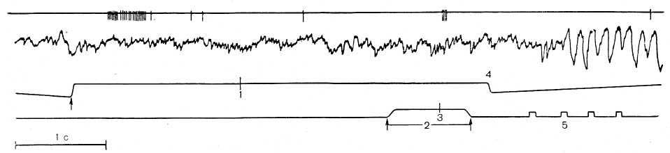 Рис. 23. Участие нейрона гиппокампа в двух поведенческих актах из цикла пищедобывательного поведения. Сверху вниз: нейронограмма, ЭЭГ, каналы отметок: 1 — щелчок, 2 — нажатие на педаль, 3 — вспышки света, 4 — морда в кормушке, 5 — подача корма. Внизу — усредненная гистограмма активности нейрона в 10 поведенческих актах.