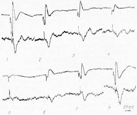 Изменение потенциалов ретикулярном формации среднего мозга (нижний луч) вызванных стимуляцией VP таламуса, при охлаждении CI области коры