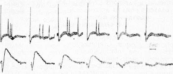 Изменение экстраклеточной активности (верхний луч) одиночного нейрона СМ таламуса, вызванного стимуляцией VP таламуса, при охлаждении СII области коры