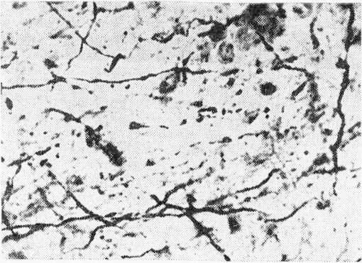 Терминальная дегенерация кортикофугальных волокон в срединном центре (СМ) таламуса кошки после коагуляции II соматосенсорной области коры