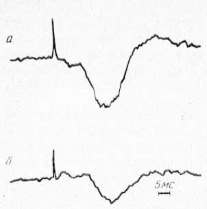 Фокальные потенциалы ретикулярной формации среднего мозга (а) и СМ таламуса (б), вызванные стимуляцией заднего вентрального ядра (VP) таламуса