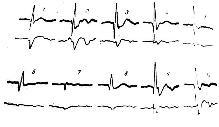 Изменение потенциалов СМ (нижний луч), вызванных стимуляцией VP таламуса при охлаждении СII области коры